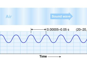 What is a Sound Wave in Physics?